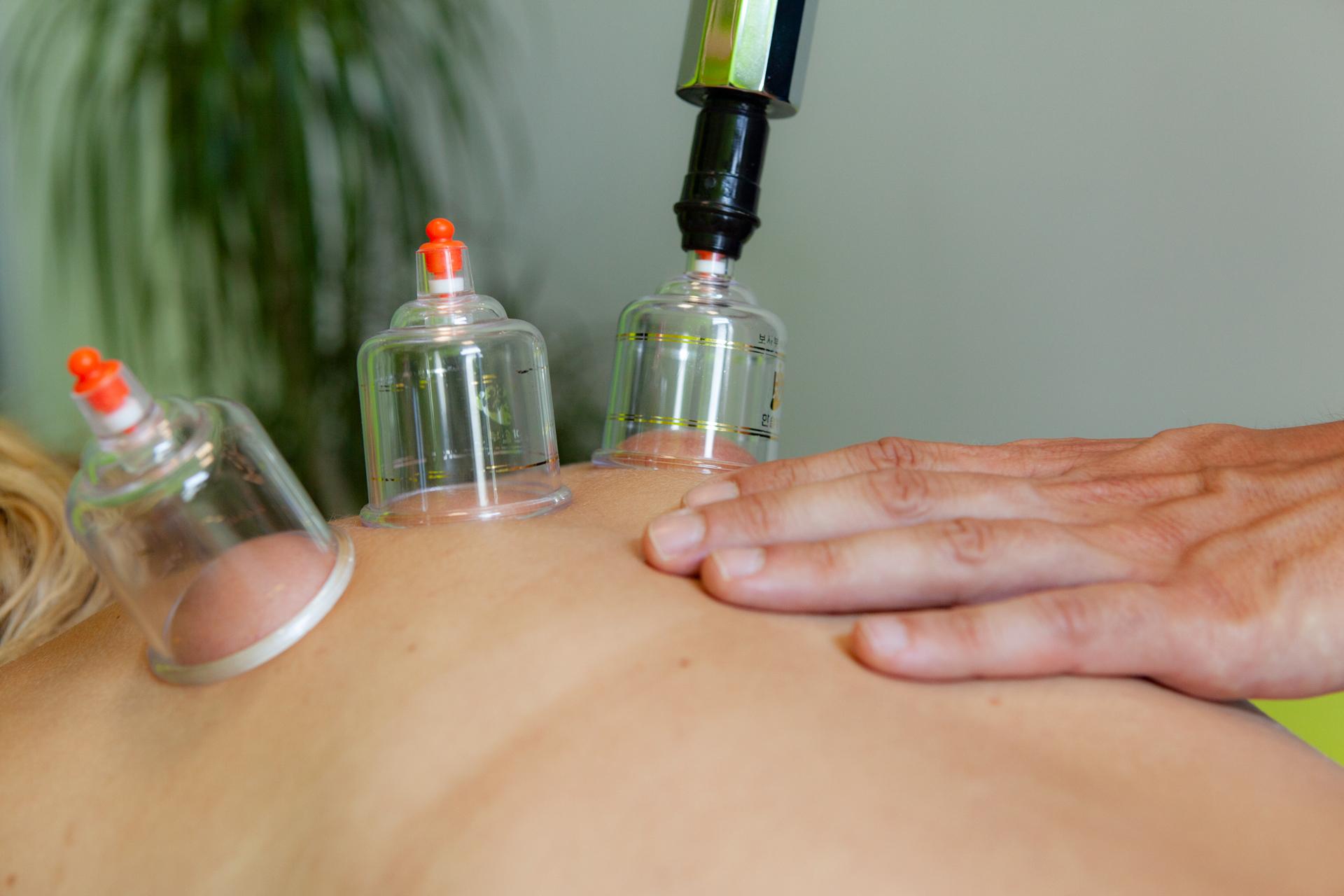 Coppettazione sul tratto dorsale per risolvere dei dolori cronici al rachide